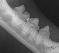 Tooth Resorption Normal Image